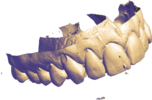 3D Model of Dental Imprint